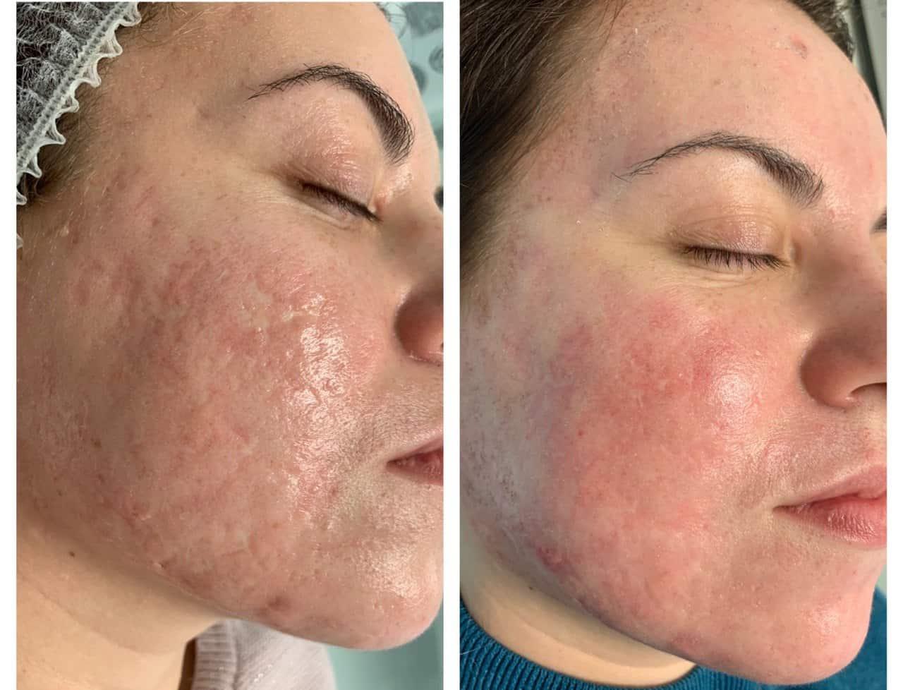 Лазерне шліфування обличчя