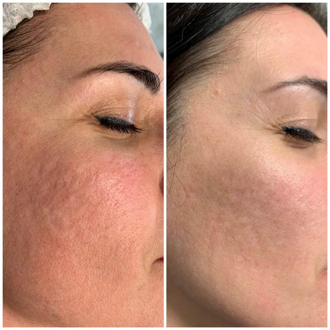 Лазерне шліфування шкіри CO2RE