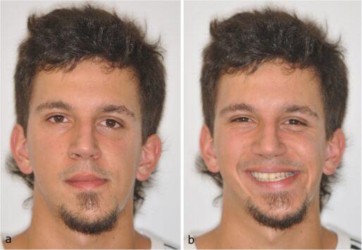 Як виправити асиметрію Обличчя