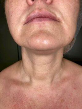 Ліфтигнг обличчя radiesse – відгуки пацієнтів