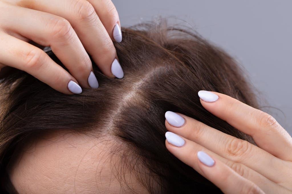 Топ 5 ричин, чому випадає волосся