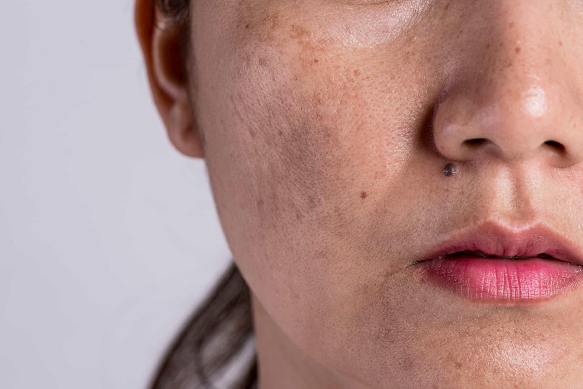 Як позбутися пігментації на обличчі?